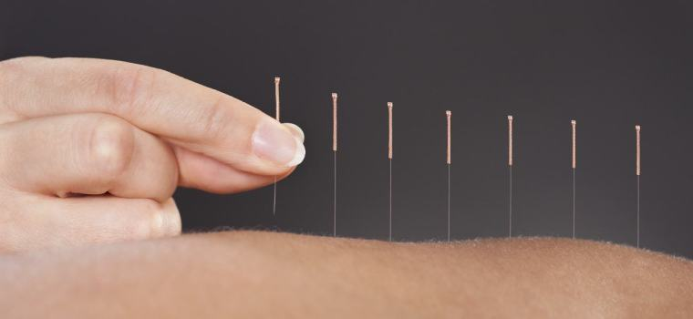 intro-acupuncture.jpg